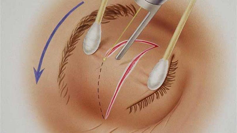 Chirurgie Paupière Laser Prix